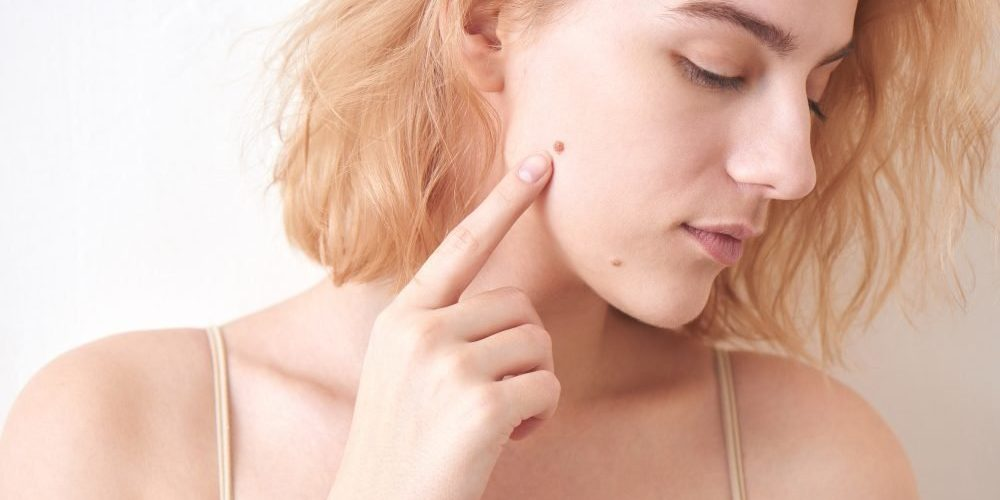 How to Treat and Remove Skin Moles.