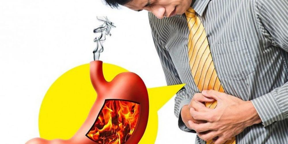 What Are The Symptoms of Acid Reflux?