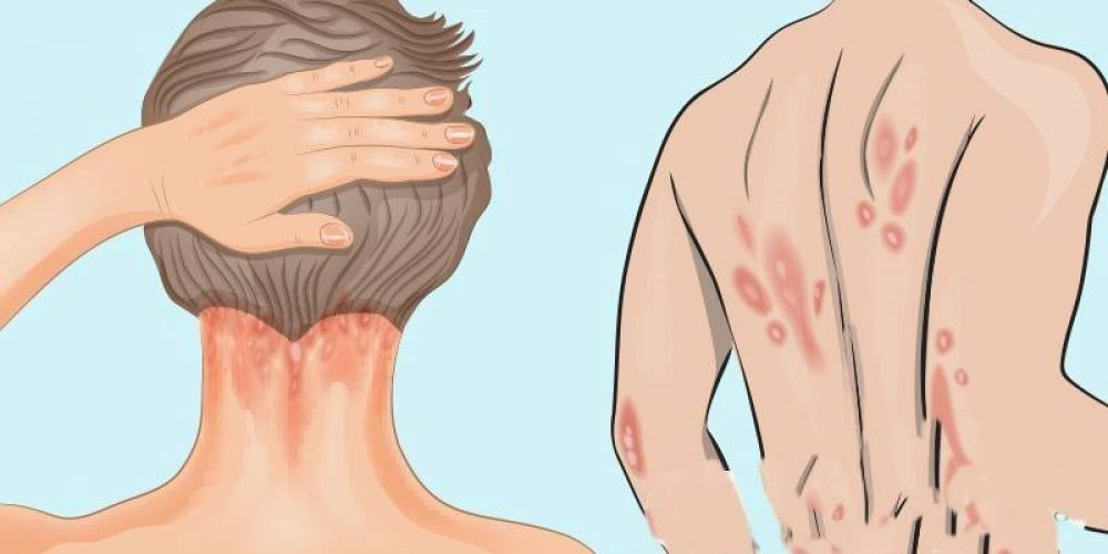 Conventional Treatments for Psoriasis – and why they could making you worse!