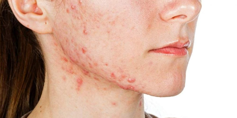 How to get rid of acne the natural way.