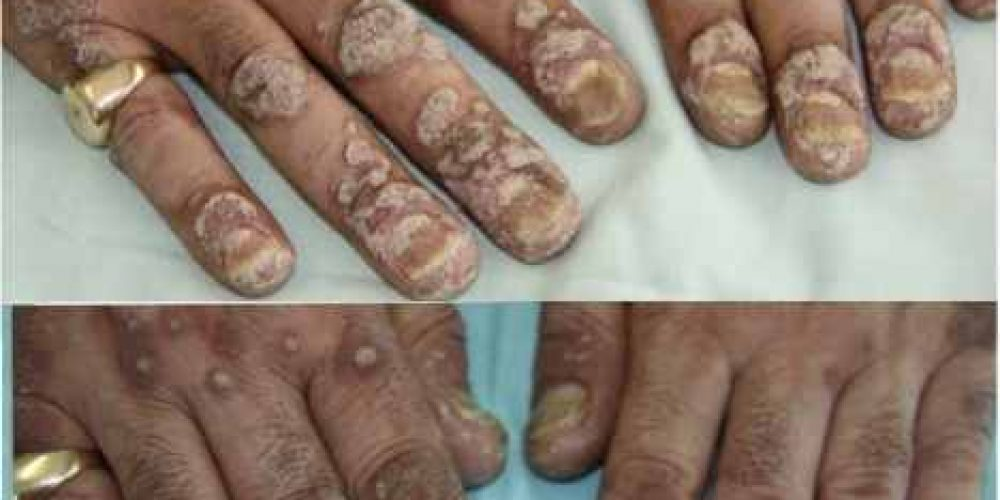 The Link Between Psoriasis and the Immune System